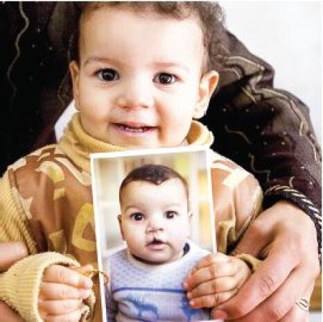 A small child holding a previous picture of himself with a cleft lip