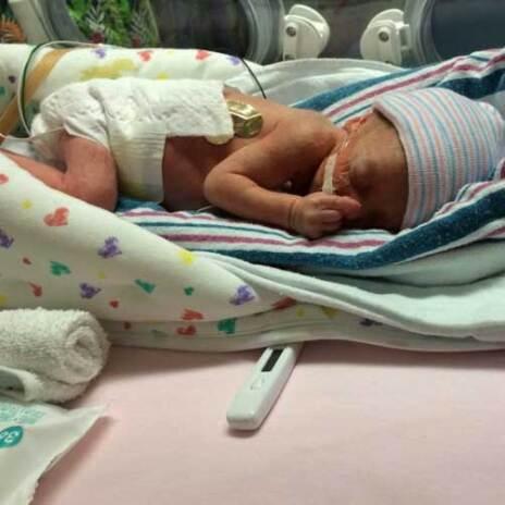 Newborn baby in NICU